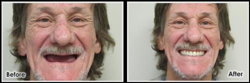 Southfield Dentist Dentures Cases Drs Fragnoli And Halmaghi