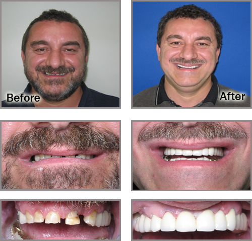 Southfield Extreme Cosmetic Dental Makeover - Drs  Fragnoli