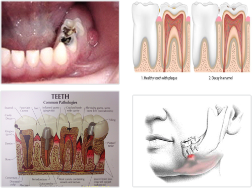 how to get rid of tooth pain after filling